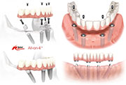 THE ALL ON 4 DENTAL IMPLANT TECHNIQUE – CHARACTERISTICS AND COSTS