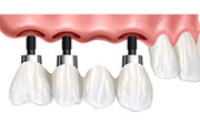 ARE YOU A GOOD CANDIDATE FOR DENTAL IMPLANTS
