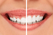 GINGIVECTOMY VS GINGIVOPLASTY