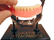 Locator attachments