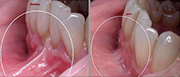 Pre-prosthetic surgical interventions (correction of highly attached labial and lingual frenulum)