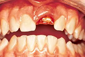 Peri-implant soft and hard tissue management in the aesthetic zone